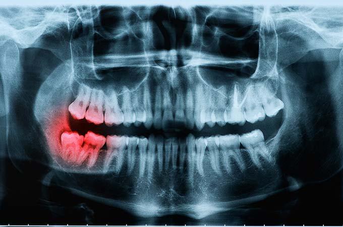 Wisdom Teeth Removal X-Ray